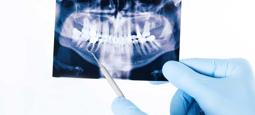 Digital Radiology and Dental Radiology